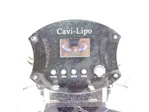 ワールドアソシエイツ キャビテーション Cavi-Lipo キャビリポ  販売
